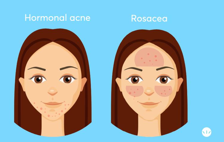 Hormonal acne vs rosacea infographic