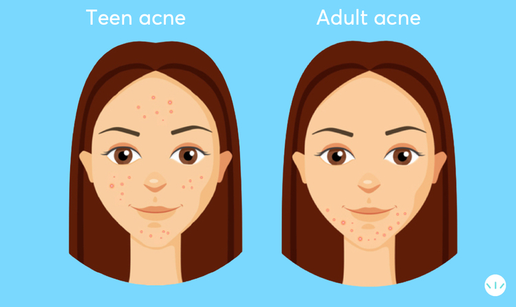 Teen acne vs adult acne infographic