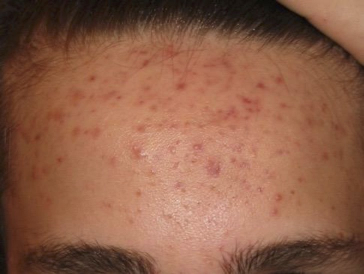 Teen with forehead acne