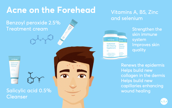 Forehead acne treatment infographic