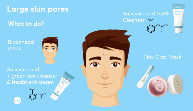 Best treatments for large pores infographic