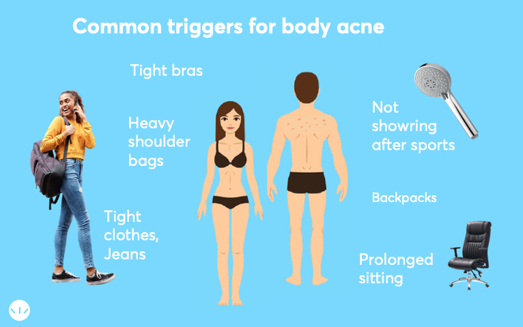 Common triggers of body acne infographics