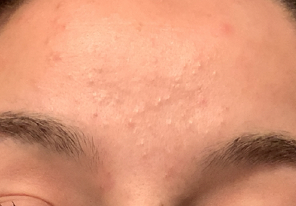 white comedones on a woman forehead