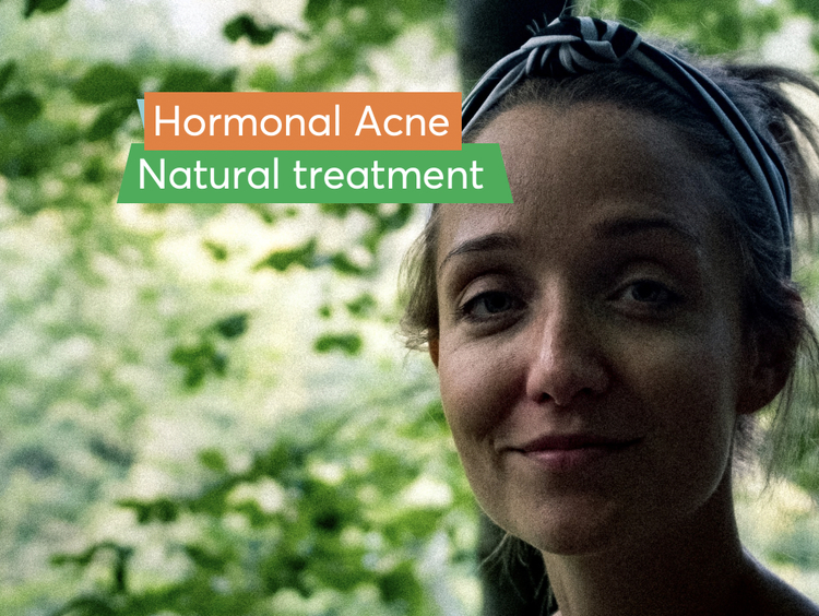 Woman in headband utilizing natural solutions for hormonal acne.