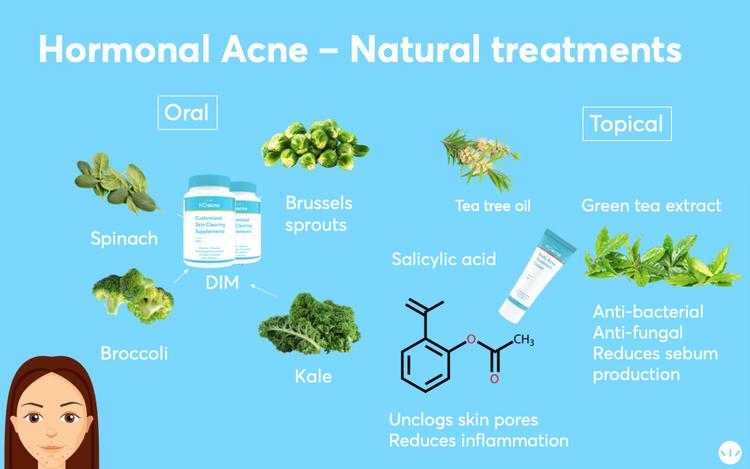 Hormonal acne best natural treatment infographics