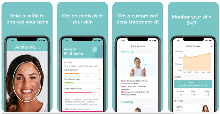 MDacne app allowing immediate acne analysis