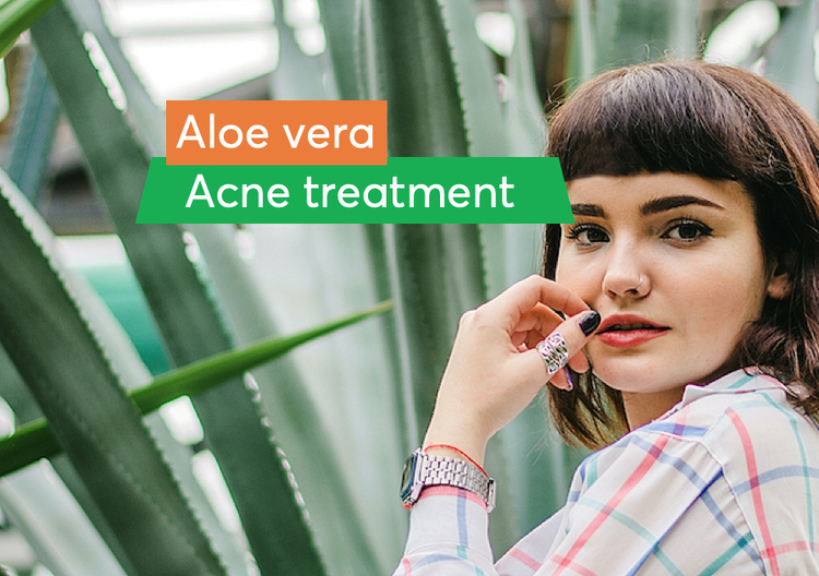 Women with an aloe vera plant, useful for treating acne