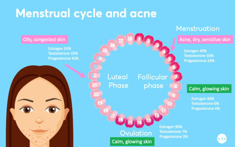 Acne and mestrual cycle