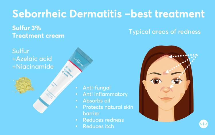 Best treatment for seborrheic dermatitis sulfur