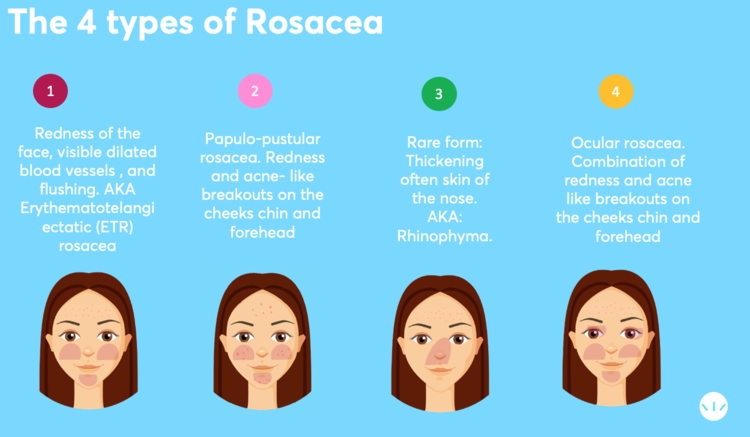 The 4 types of rosacea